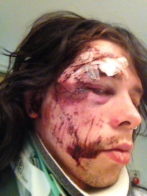 The Gauntlet Skull Fist Frontman Fractures Skull And