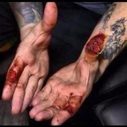 trivium blister hands